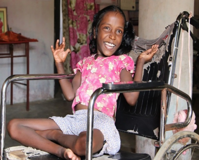 young girl with disability